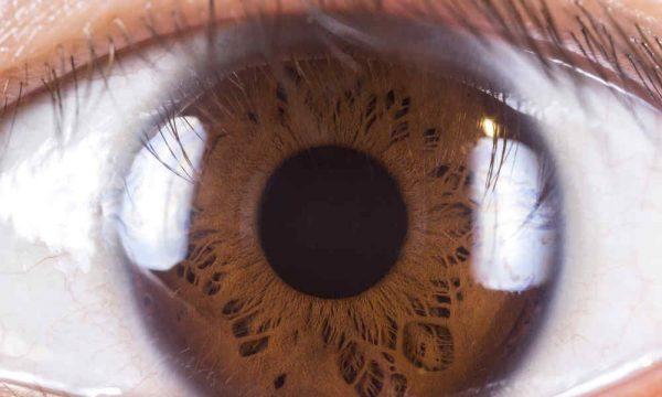 One Brown Eye